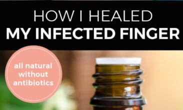 "Pinterest pin with two images. The first image is of a woman putting a bandaid on her finger. The second image is of a bottle of essential oil sitting on a counter with herbs. Text overlay says, ""How I healed my infected finger: all natural without antibiotics""."