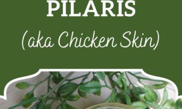 """Pinterest pin, image is of an open jar filled with scrub. Text overlay says, """"DIY Scrub for Keratosis Pilaris: aka 'chicken skin'."""""""