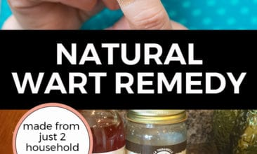 "Pinterest pin with two images. The first image is a woman putting a bandaid on her finger. The second image is of a jar of apple cider vinegar, a jar of coconut oil, bandaids and cotton balls sitting on a kitchen counter. Text overlay says, ""Natural Wart Remedy: made from just 2 household ingredients!""."