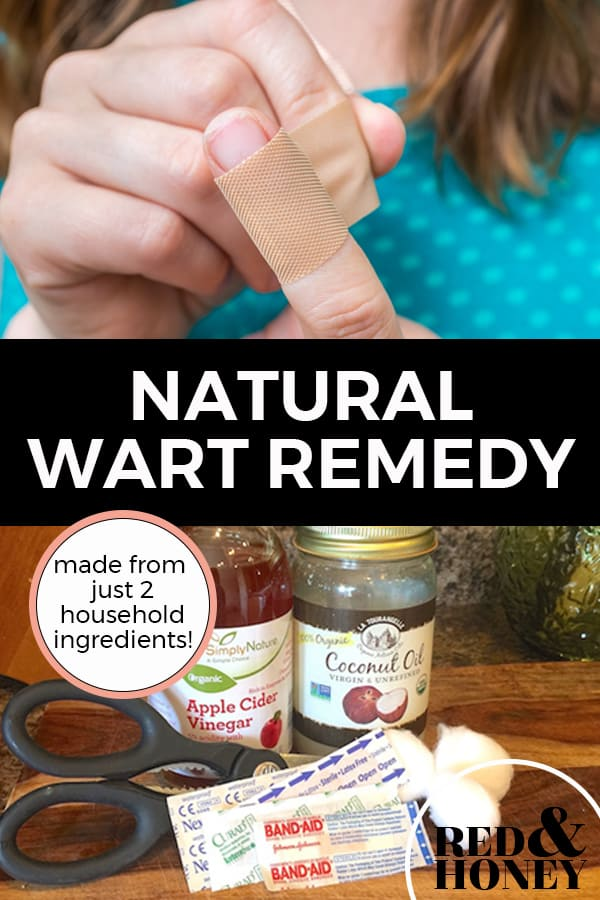 """Pinterest pin with two images. The first image is a woman putting a bandaid on her finger. The second image is of a jar of apple cider vinegar, a jar of coconut oil, bandaids and cotton balls sitting on a kitchen counter. Text overlay says, """"Natural Wart Remedy: made from just 2 household ingredients!""""."""