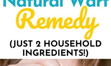 """Pinterest pin with two images. One image is a woman putting a bandaid on her finger. Second image is of a jar of apple cider vinegar, a jar of coconut oil, bandaids and cotton balls sitting on a kitchen counter. Text overlay says, """"Natural Wart Remedy: made from just 2 household ingredients!""""."""