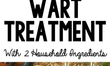 """Pinterest Pin with two images. The first image is a bunch of kids hands with thumbs up. Second image is of a bottle of apple cider vinegar, bandaids and cotton balls sitting on a counter. Text overlay says, """"Natural & Effective Wart Treatment with 2 Household Ingredients""""."""