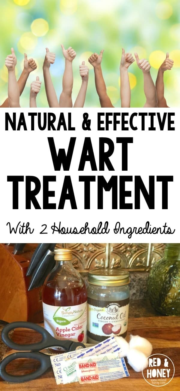 Warts. Yep. This post is about warts. We all hate warts. We don't even like to talk about them. But could there be a more unifying topic? We hate them and want them to die. Thankfully this natural remedy is super effective and easy!