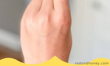 a pin image of a finger in the air with a wart bandaid on it, plus text overlay in yellow that reads Wart Remedy